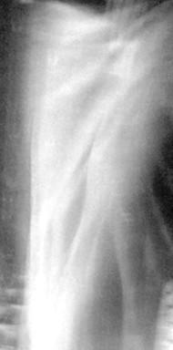 O infinito silenzio (2004)